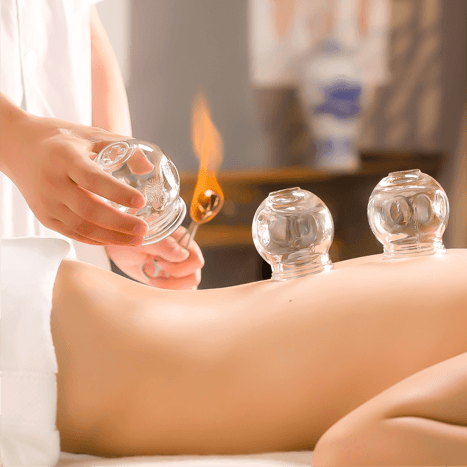 العلاج بالحجامة Cupping Therapy 15